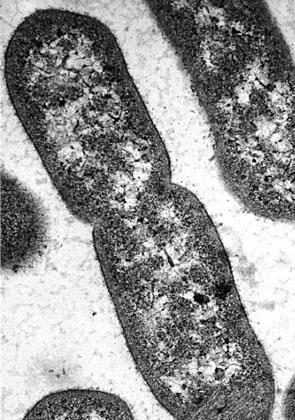 bacteries-microscope.jpg
